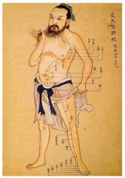 acupuncture-litographie-1.jpg